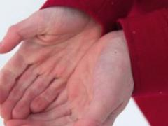 手掌脱皮是什么原因 这6个是主要原因