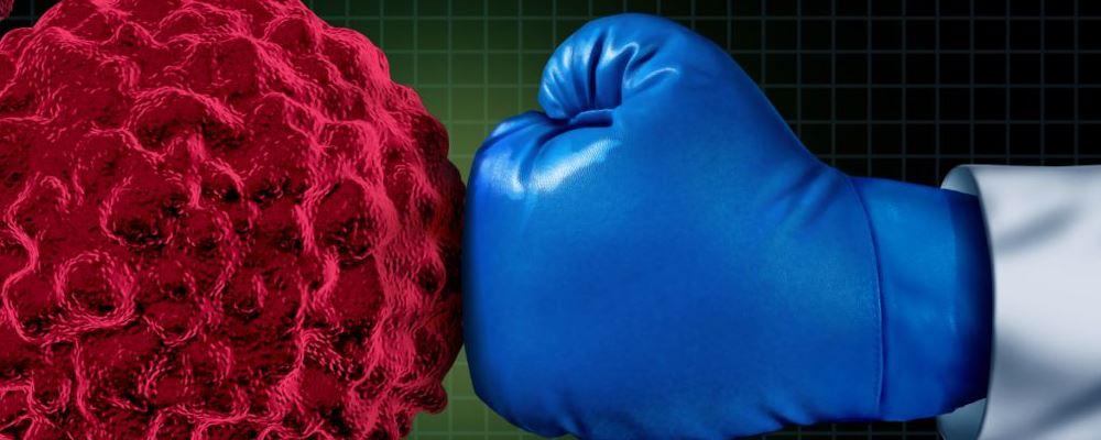 胰腺癌有什么症状 胰腺癌如何治疗 胰腺癌如何预防