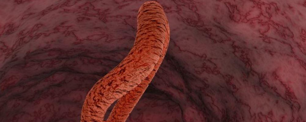 动脉硬化怎么吃 动脉硬化吃什么 动脉硬化如何吃