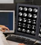 28岁女孩患乳腺癌 分享抗癌日记感动网友