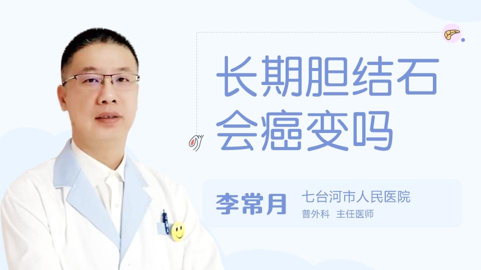 长期胆结石会癌变吗